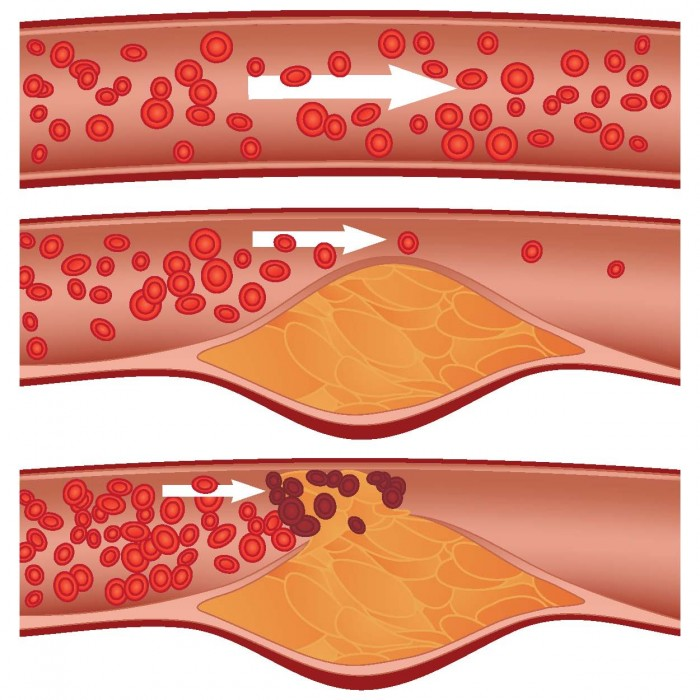 atherosclerosis-science-figure
